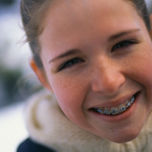 Brace Face How to Keep Up with Your Family's Orthodontic Costs