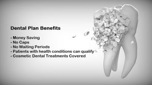 Why You Must Consider a Dental Plan to Pay Off Your Expenses?